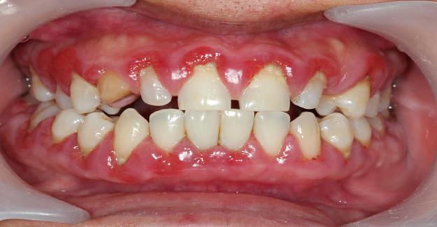 Diş Eti Hastalıkları Neden Oluşur ?