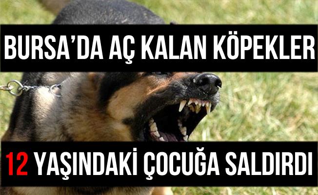 Bursa Yıldırım'da Köpekler 12 Yaşındaki Çocuğa Saldırdılar
